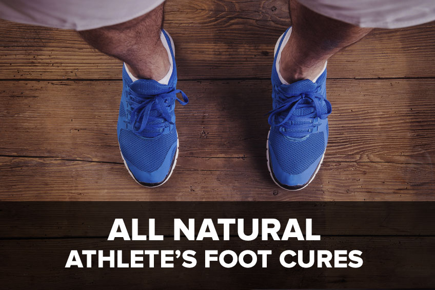 All Natural Athlete's Foot Cures – No Prescription Needed