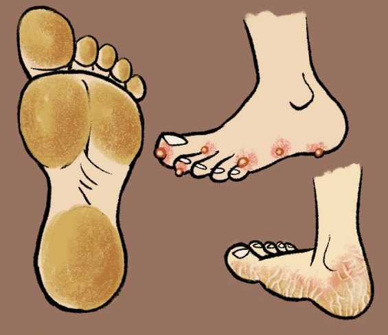 5 Ways to Stop Plantar Warts From Spreading