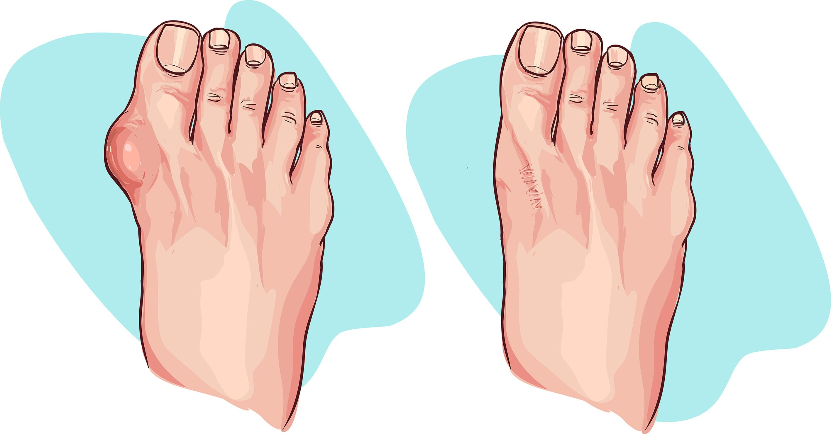 Shooting Toe Pain | DermalMedix