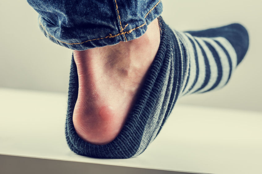 How to Prevent Blisters From Forming (6 ways to avoid them)