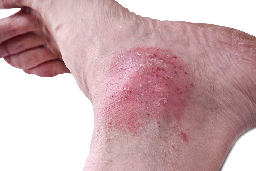 psoriasis on foot