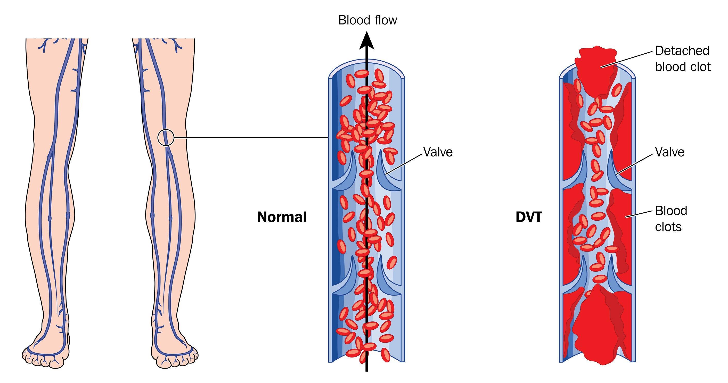 DVT   DermalMedix