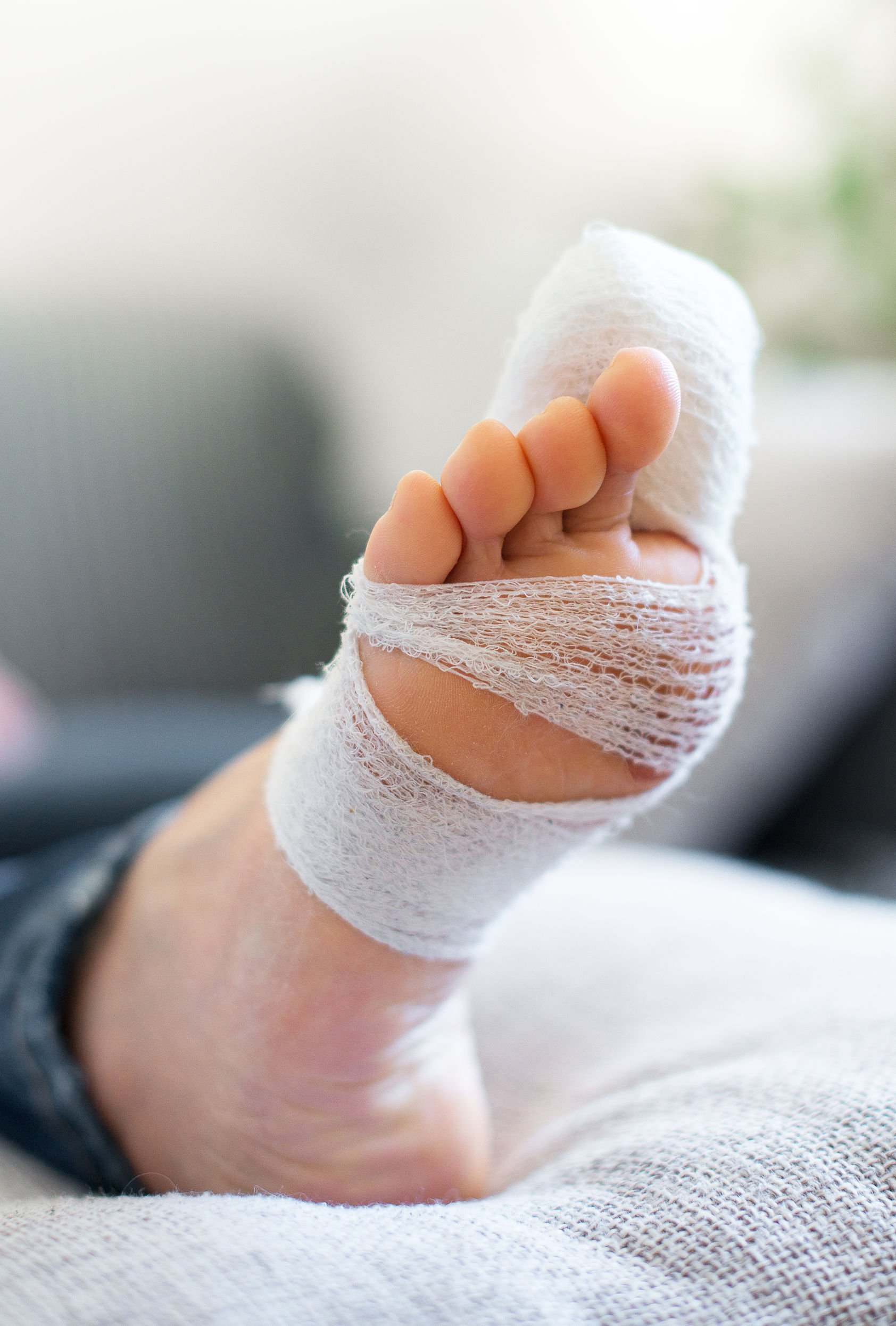 Broken Toe | DermalMedix