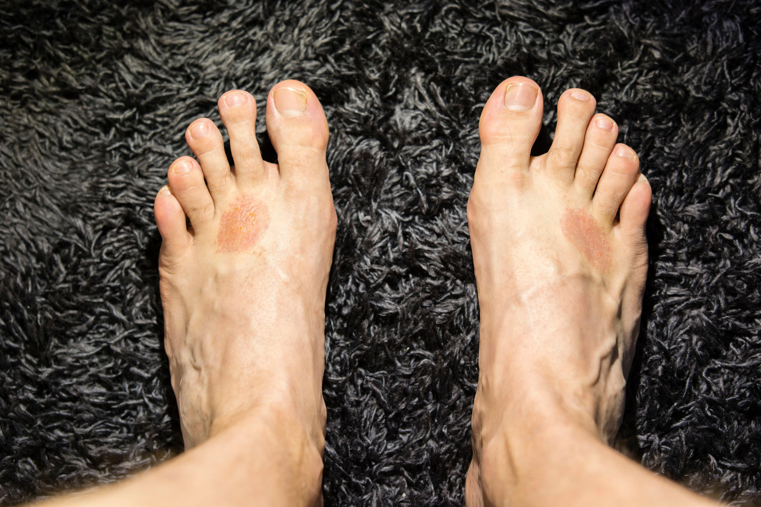 5 Types of Foot Rash and How to Treat Them