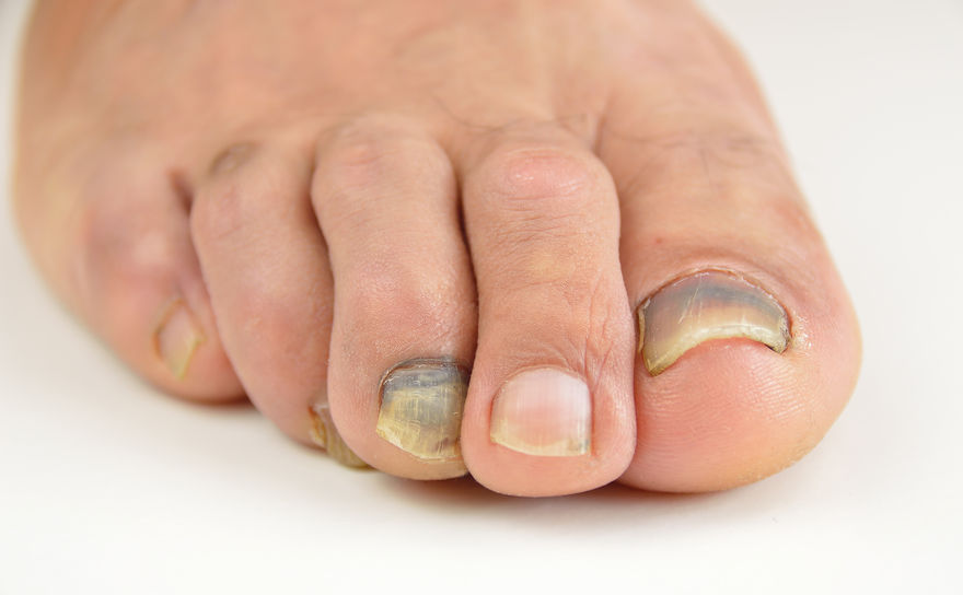 Black Spot Under The Toenail | DermalMedix