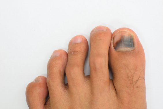 Black and Blue Toenail? Here's How to Find Relief