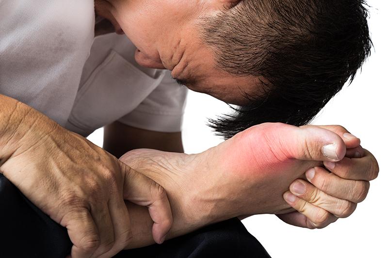 Blue Toe Syndrome | DermalMedix