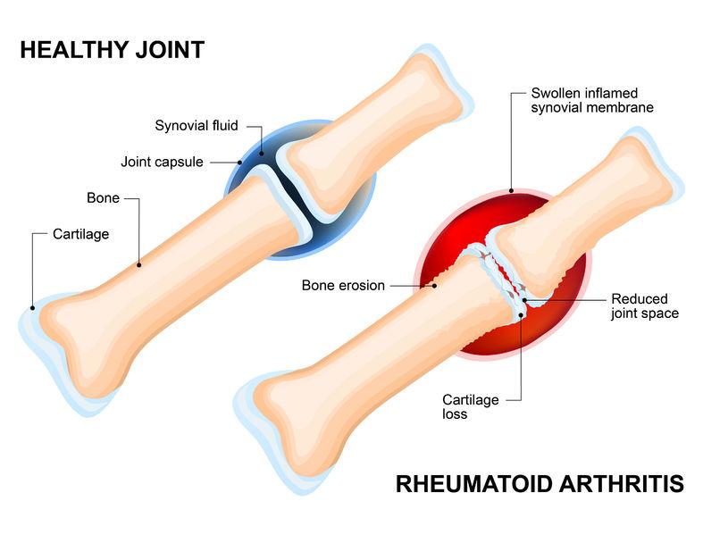 Foot Joint Pain | DermalMedix
