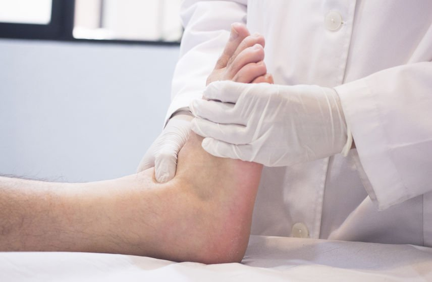 Poor Circulation in Feet | DermalMedix