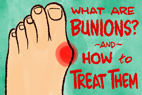 What Are Bunions On The Feet? (and how to find relief)