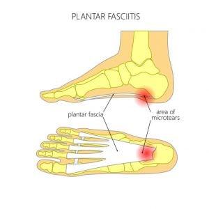 Foot Problems   DermalMedix