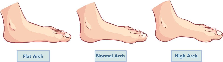 foot arch | DermalMedix