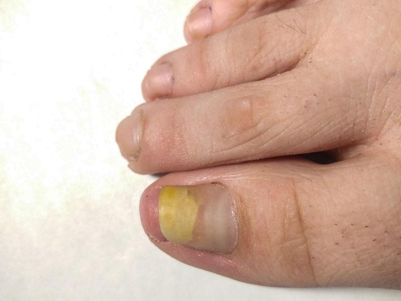 Yellow Toenails | DermalMedix