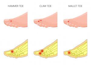 Claw Toes | DermalMedix