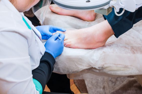 Why You Get Ingrown Toenails (and how to prevent them)