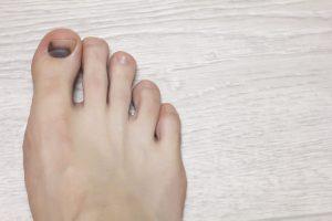 Losing Toenails | DermalMedix
