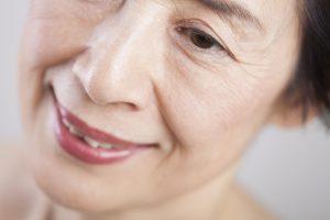 Crepey Skin | DermalMedix