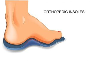 flat feet pain | DermalMedix