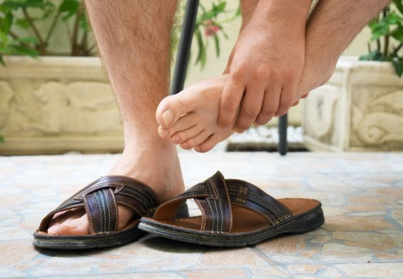 Bump on Side of Foot – Causes and Remedies of this Condition