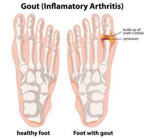 Bump Side Foot   DermalMedix