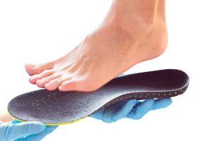 foot overpronation | DermalMedix