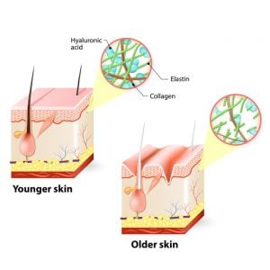 sagging skin | DermalMedix