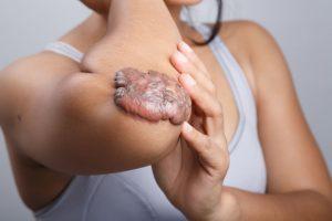 Keloid vs. Hypertrophic Scar | DermalMedix