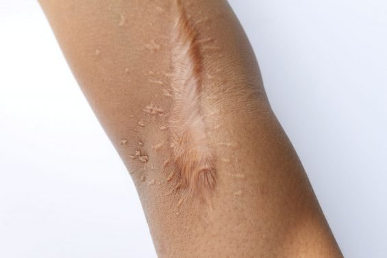 Keloid vs. Hypertrophic Scar – What You Need to Know