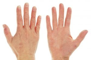 chapped hands | DermalMedix