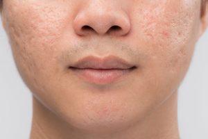 purple scar | DermalMedix