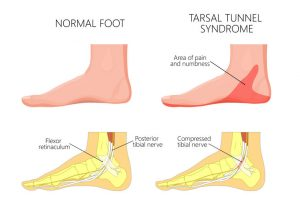 burning foot pain | DermalMedix